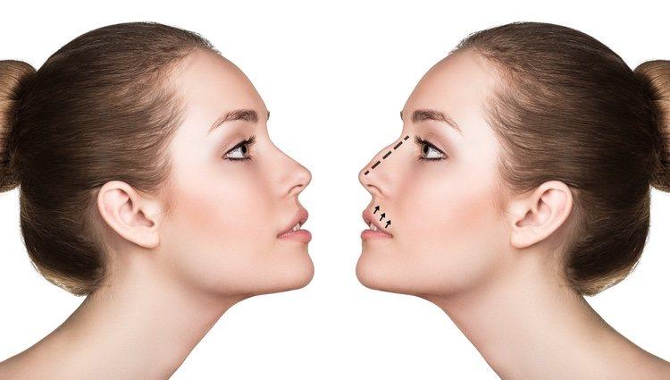 Rinoplastia: todo lo que necesitas saber sobre la cirugía de nariz