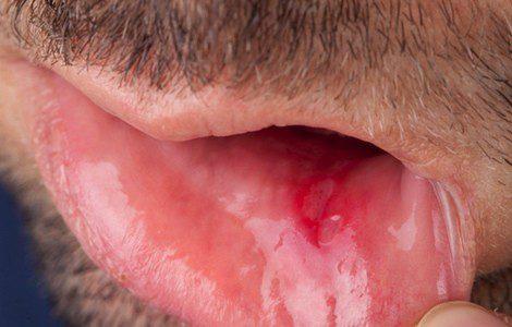 Cmo aliviar la irritacin vaginal: 14 pasos