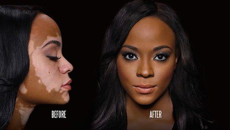 Cheri Lindsay antes y después de Dermablend Professional