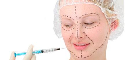 ¿En qué zonas se puede aplicar el botox?