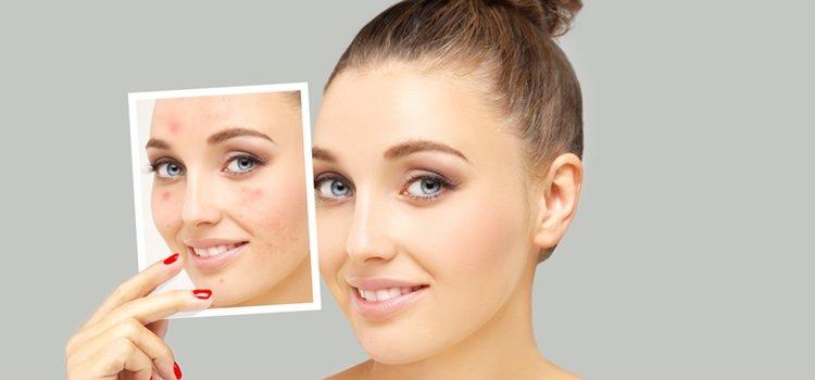 El maquillaje permanente: ¿cuánto dura la micropigmentación?