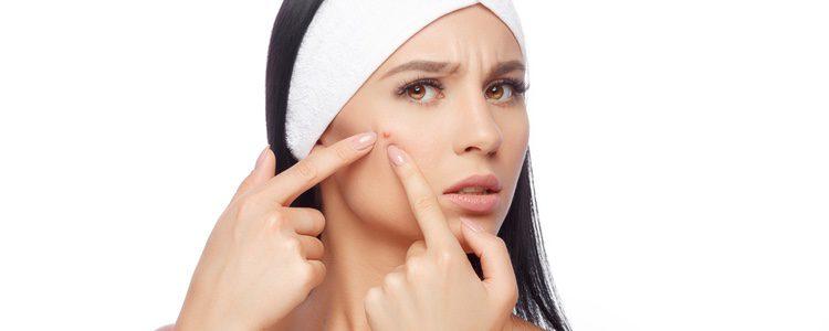 Maquillarse cuando te sale un granito no es tarea fácil. Hay que tener cuidado para que la piel no se infecte