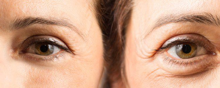 El botox se utiliza sobre todo en el contorno de los ojos y en el entrecejo