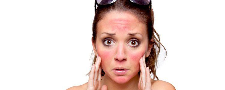 La protección solar es fundamental para cuidar nuestra piel bajo el sol
