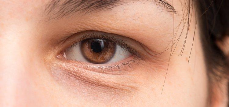 Múltiples razones para los ojos hinchados