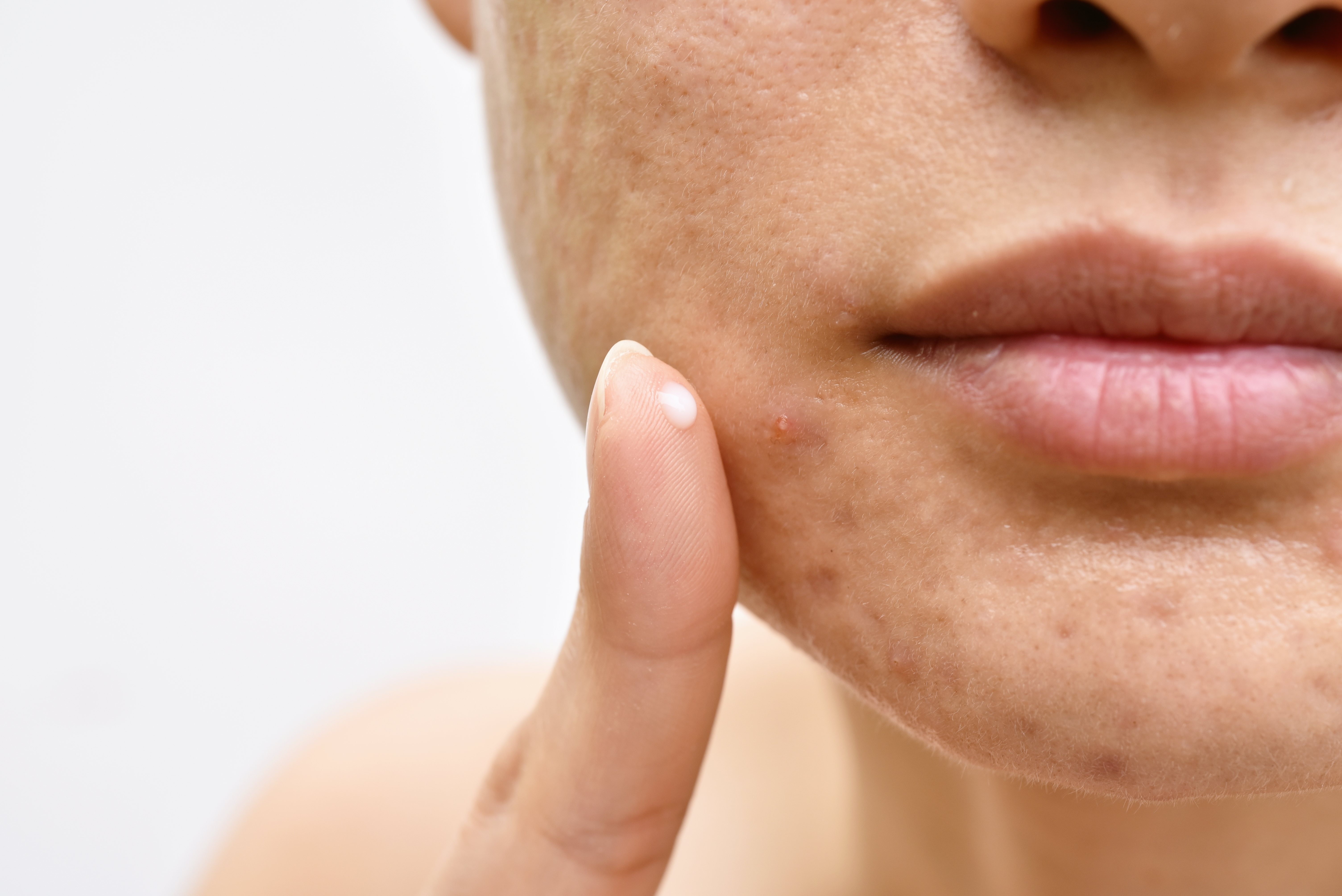 El acné es una de las enfermedades más comunes
