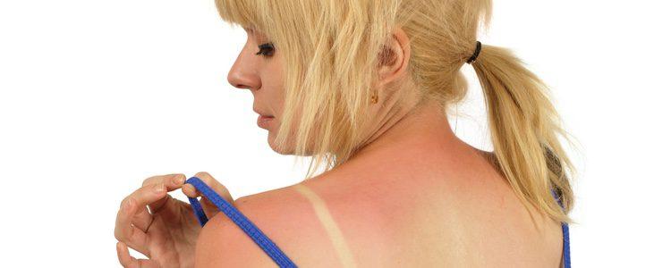 El sol puede provocar enrojecimiento y picores en la piel