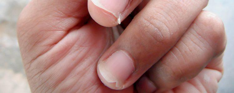 Puedes tener las uñas frágiles por la falta de vitaminas o minerales