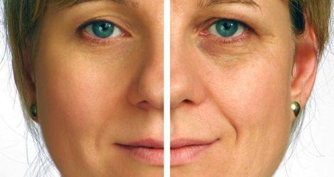 Diferencia significativa en la rutina de cuidarse o no la piel diariamente