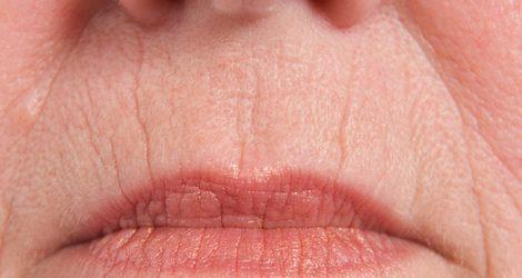 Arrugas en el contorno de los labios
